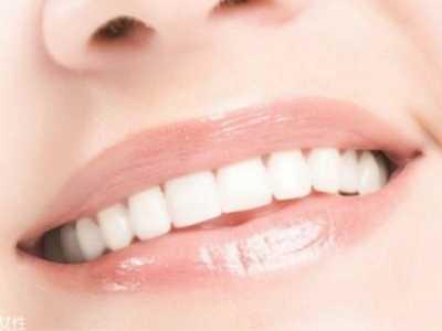美容牙冠可维持多久 牙齿美容冠可以保持多久
